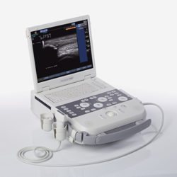 Siemens Acuson P300 + Transd. Convexo
