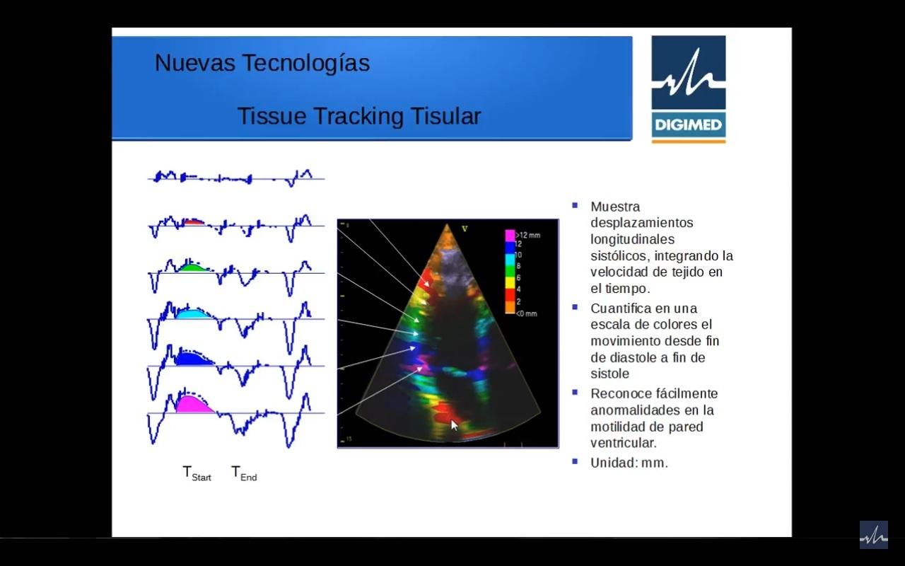 Nuevas tecnologías en Ecocardiografía – parte 4º